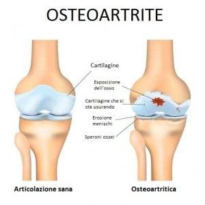Artrite ginocchio