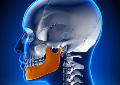 Mal di testa, mal d'orecchio, rumori quando apri e chiudi la bocca, Dolore quando sbadigli, o quando mastichi o quando spalanchi la bocca. Cos'hanno in comune?