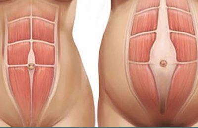 Diastasi dei retti